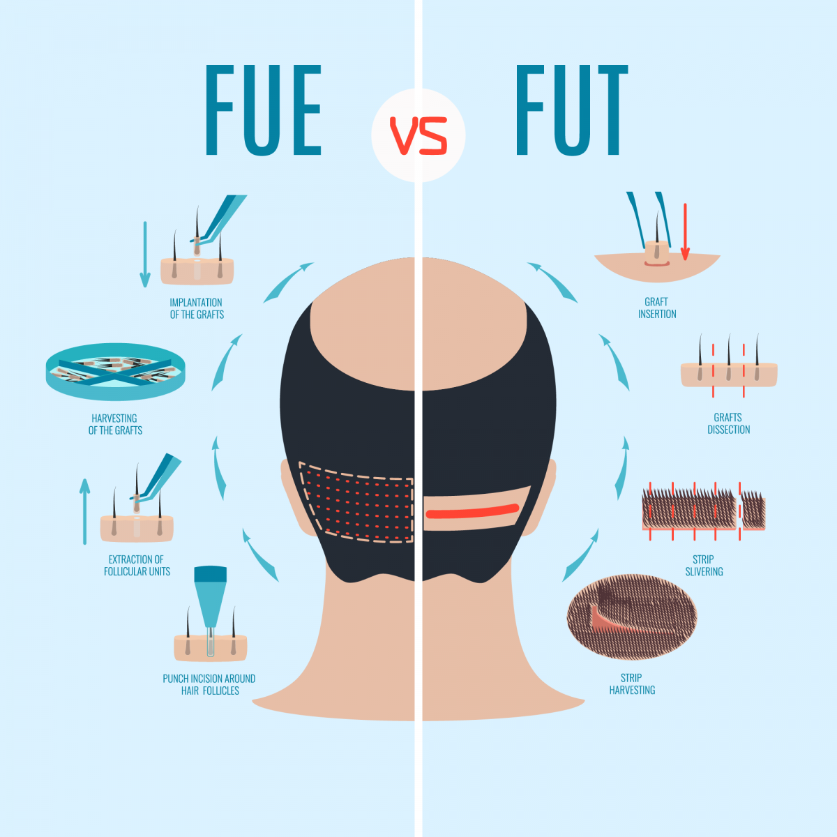 Follicular Unit Extraction (FUE) Versus Follicular Unit Transplantation (FUT)