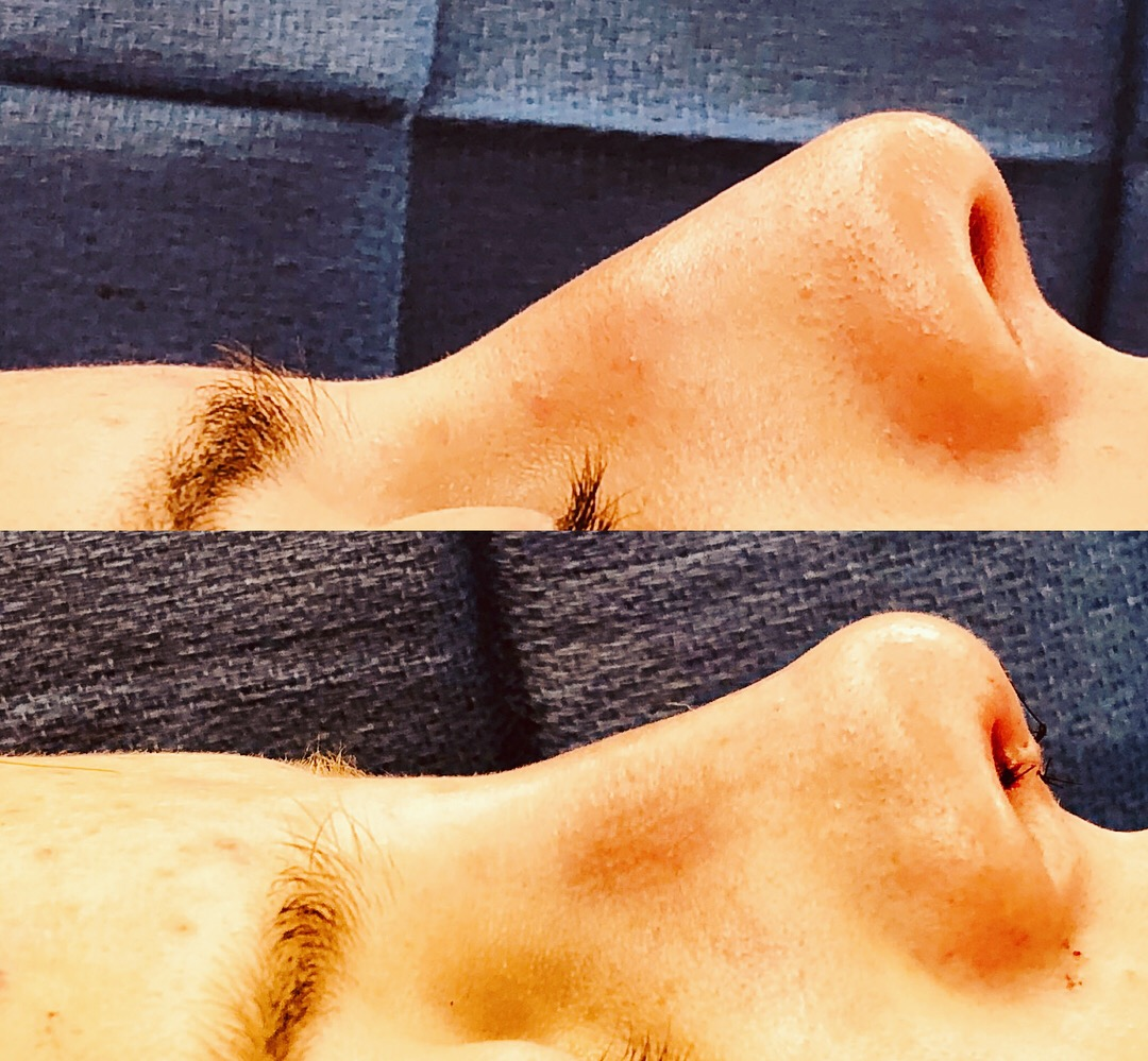What Happens During a Rhinoplasty or Nose Job Procedure?
