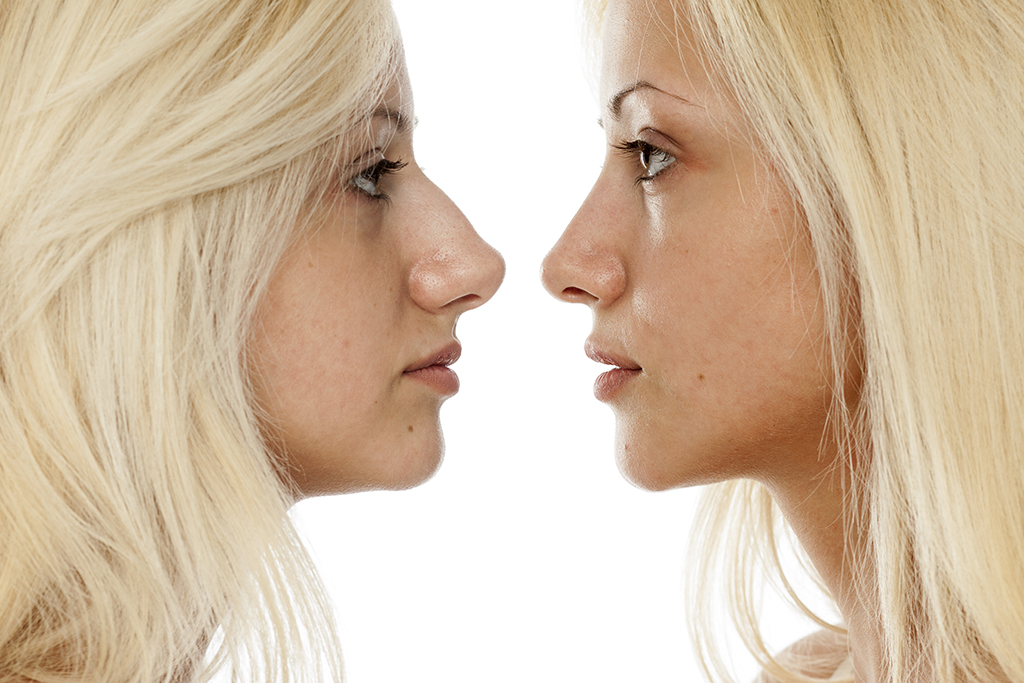 How long does it take to recover from a nose job (rhinoplasty)?